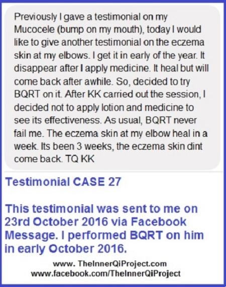 BQRT Testimonial Case 27