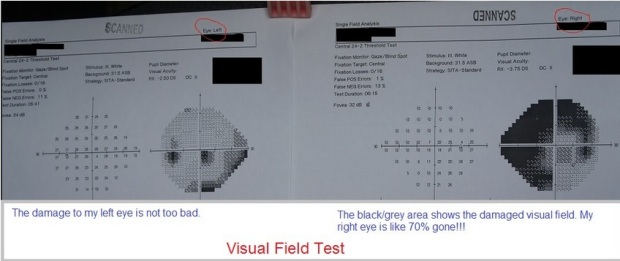 Vision Field Test